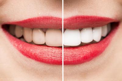 Wybielanie zębów kołobrzeg